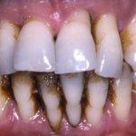 أمراض الأسنان Size:26.10 Kb Dim: 531 x 361