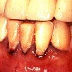 أمراض الأسنان2 Size:49.90 Kb Dim: 547 x 350