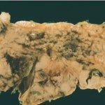 سرطان البنكرياس Size:24.70 Kb Dim: 475 x 307