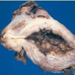 سرطان المثانه Size:49.90 Kb Dim: 451 x 310