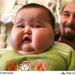 الرضيع الذي بلغ 20 كيلوغراما 3