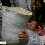 صيني يعيش بنصف جسد3