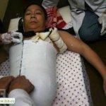 صيني يعيش بنصف جسد4