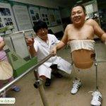 صيني يعيش بنصف جسد8