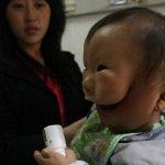 طفل يولد مع قناع وجه رباني في2
