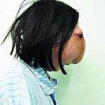 مرض غريب يصيب فتاة صينيه 2