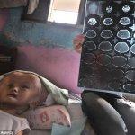 ورم نادر يحول شكل طفلة الى مخ3