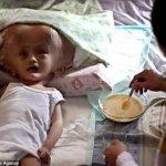 ورم نادر يحول شكل طفلة الى مخ6