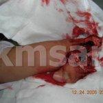 لص يقطع يد فتاة 2