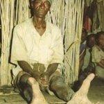 قبيله في أفريقيا يملكون أقدام3